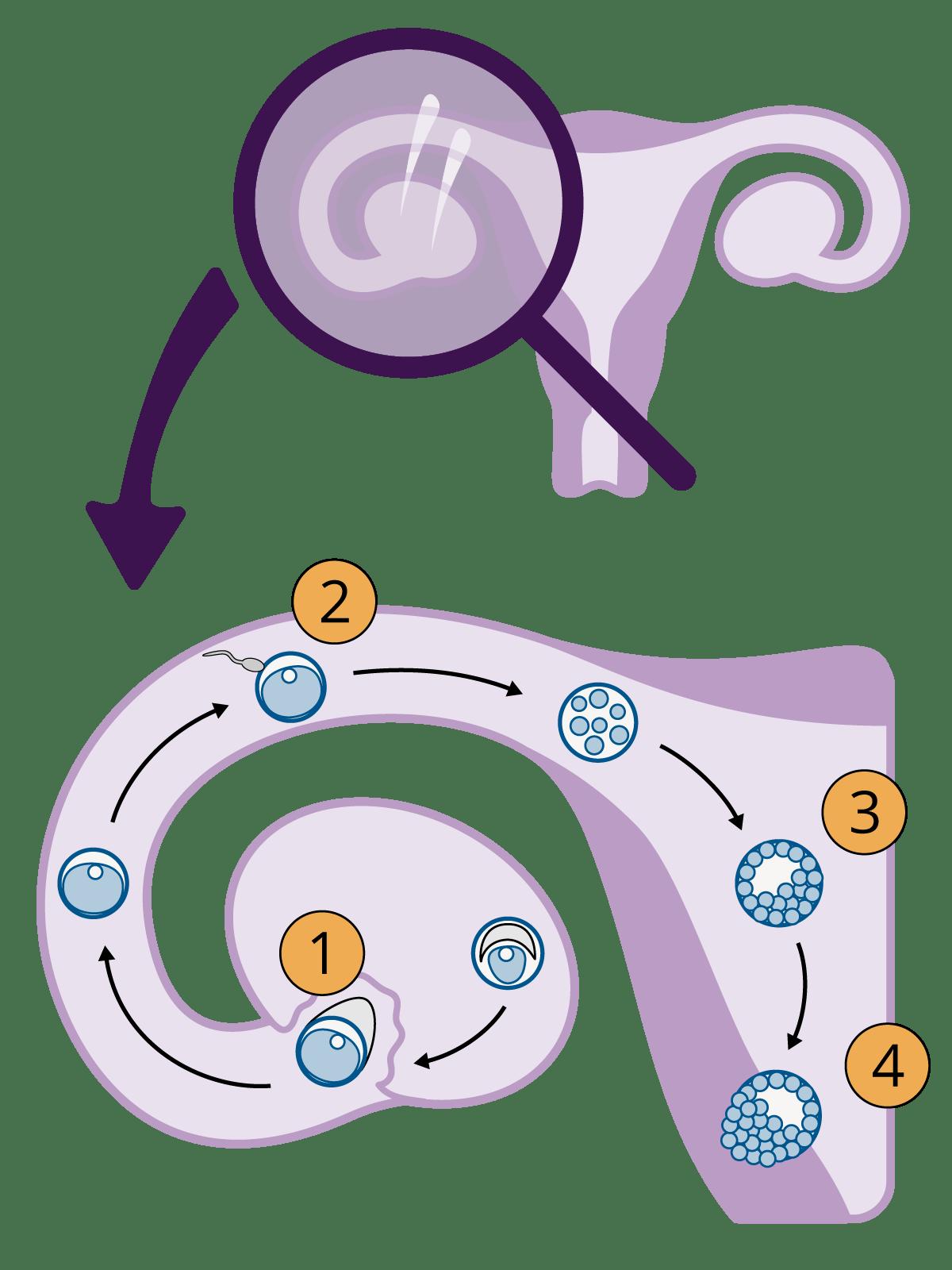 Weg der Eizelle durch den Eileiter bis zur Einnistung in der Gebärmutterschleimhaut als Infografik dargestellt.